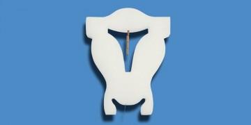 Hormonfreie Langzeitverhütung mit Kupferkette GyneFix®